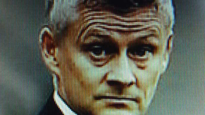 image for Ole Gunnar Solskjaer To Undergo Surgery On His Furrowed Brow