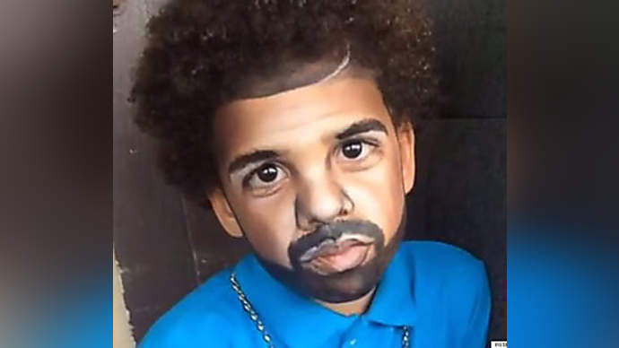 image for Drake Fans Have Plastic Surgery To Look Like The Popular Star