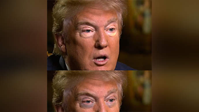 image for Investigation: Trump's Reverse Racoon Eyes