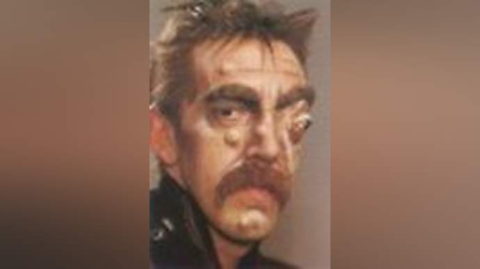 image for Tom Selleck Victim of Botched Plastic Surgery