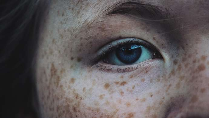 image for Local schools discover an epidemic of benign spots
