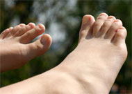 image for New strains of fungal nail disease 'named after moldy Dutch royals'